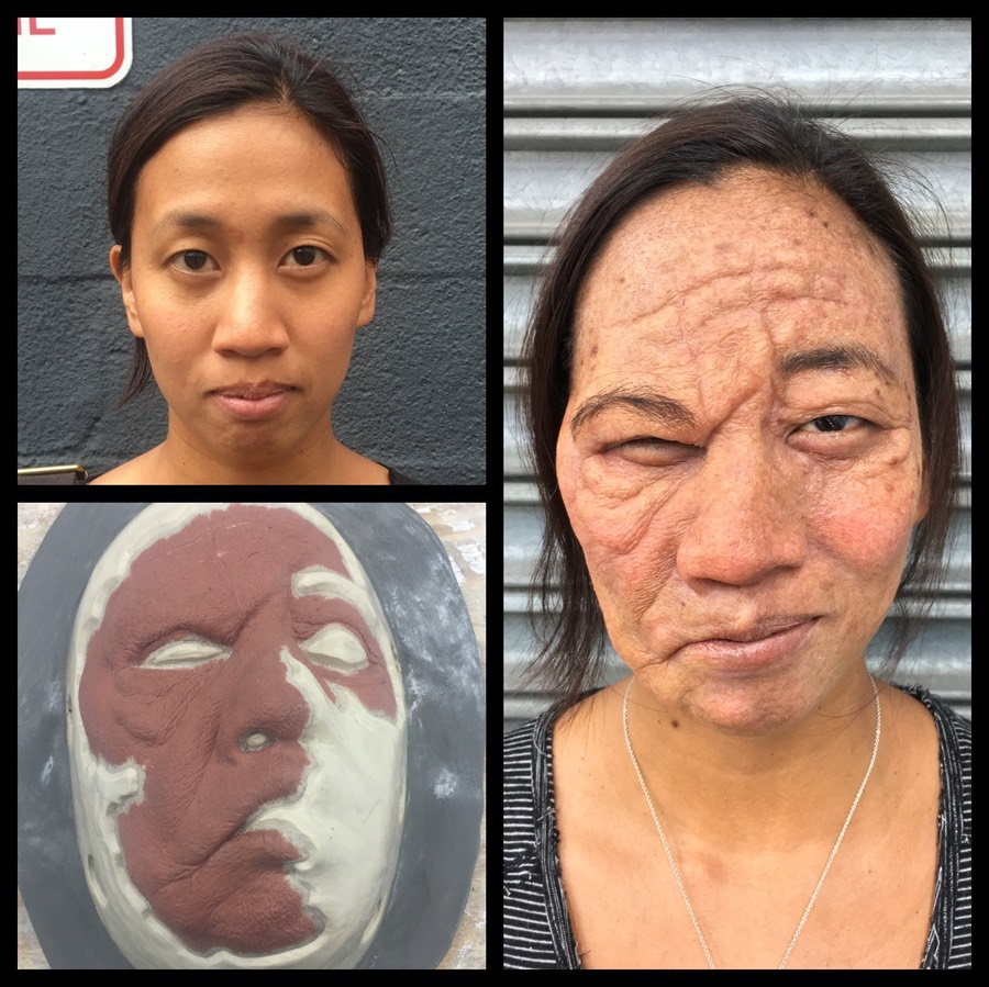 Before & After Stroke Victim & Aging